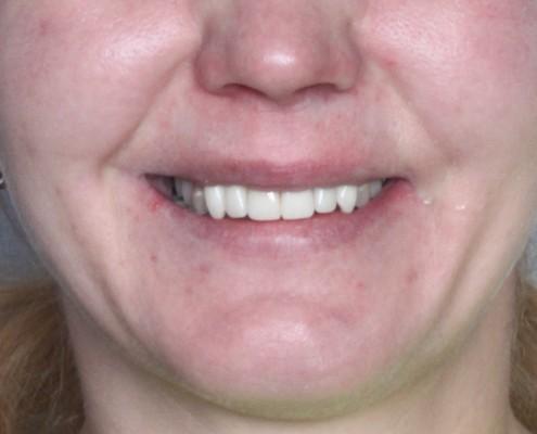 implanty w 1 dzień iława