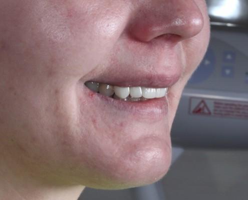 implanty stomatologiczne iława